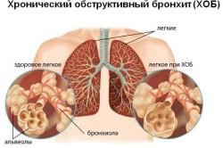 Поражение сонной артерии как причина боли в челюсти