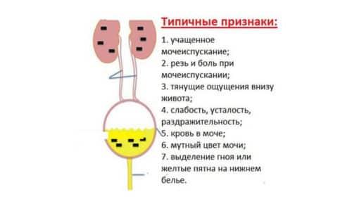 Симптомы болезней мочевого пузыря у женщин многочисленны и определяются их причиной