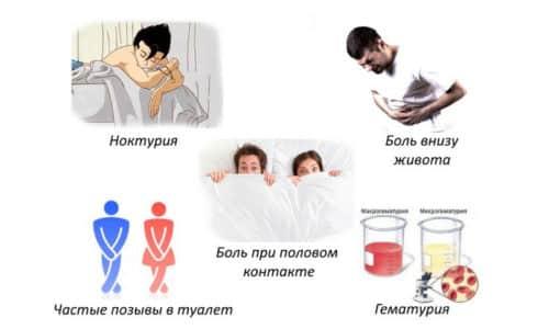 Наиболее часто дизурические симптомы обусловлены проникновением в орган инфекции с развитием цистита