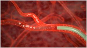 Показания для эмболизации артерий простаты