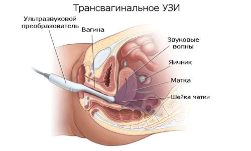 Женщинам, ведущим половую жизнь, рекомендуется трансвагинальное УЗИ